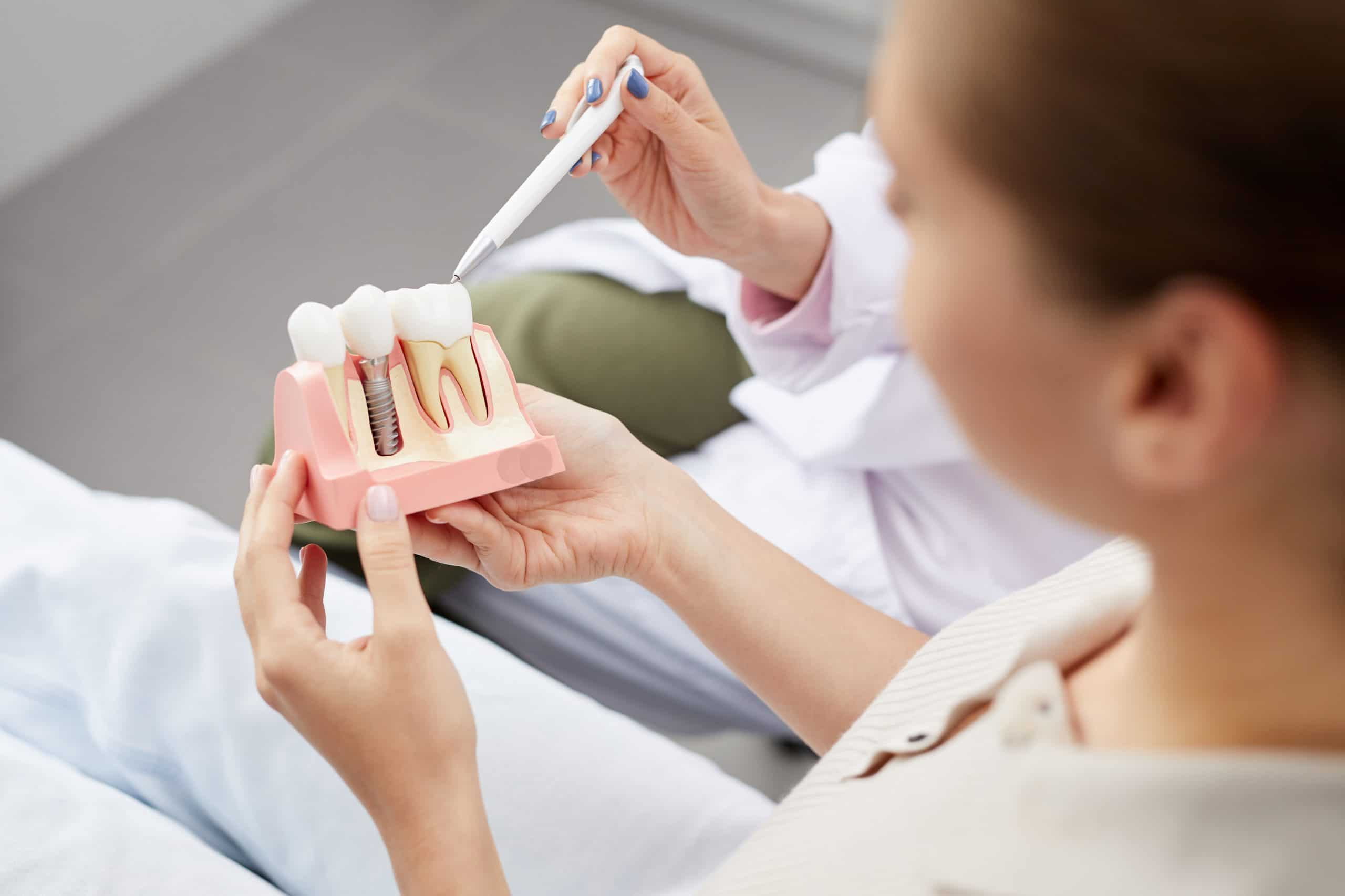 Dental Implants at Trail West Family Dentistry
